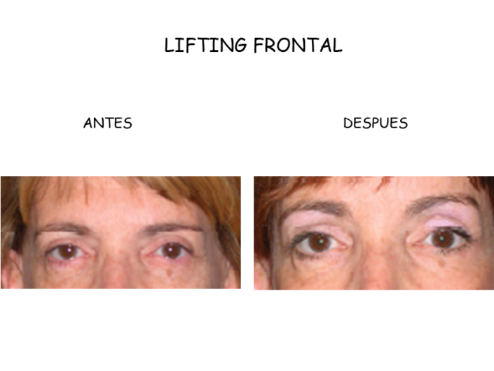 CASO CLINICO LIFTING FRONTAL