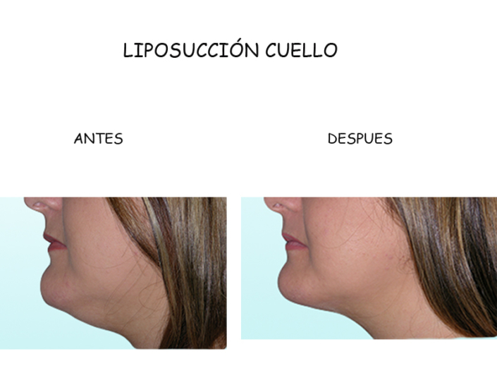 LIPOSUCCION SUBMENTONIANA