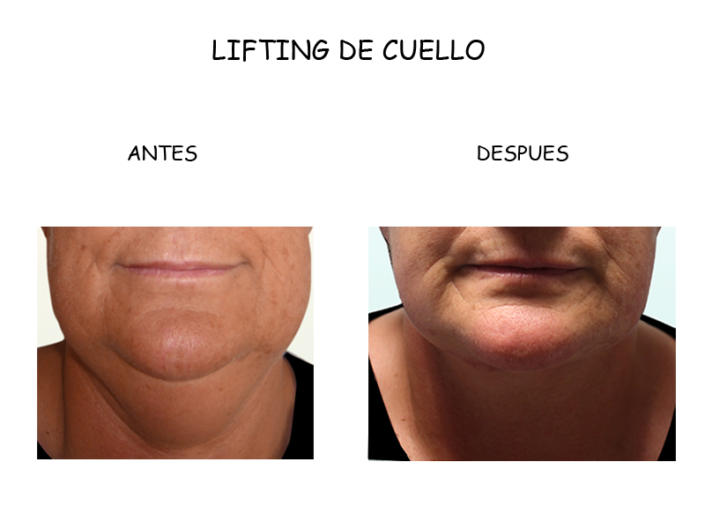 CASO CLINICO LIFTING CUELLO