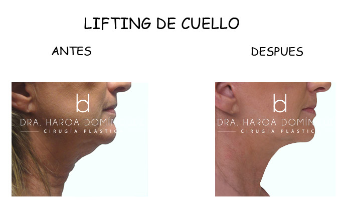 lifting-de-cuello