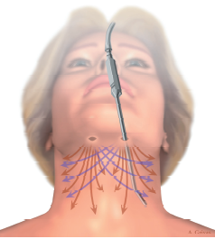 dibujo lifting cervical o de cuello o tercio inferior