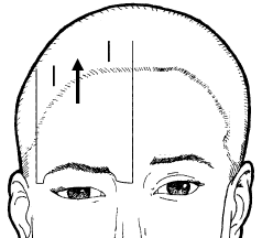 dibujo lifting frontal o de cejas
