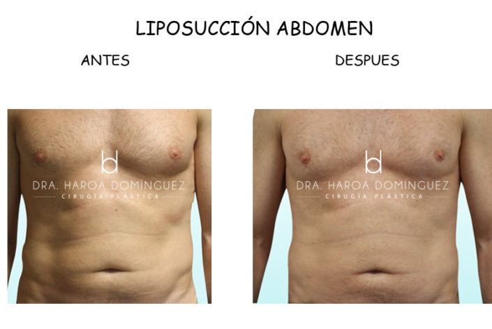 liposuccion-abdomen