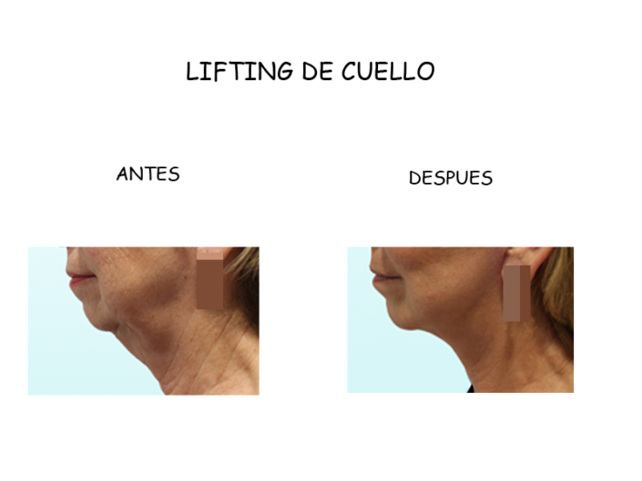 lifting cuello